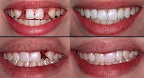 ADC-Bone-Grafting-Before-After-Web