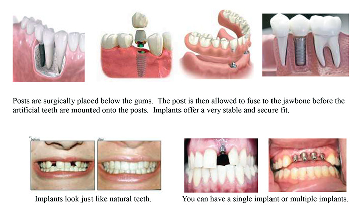 ADC-Dental-Implants-Photo#2-Web