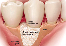 ADC-Dental-Implant-Web