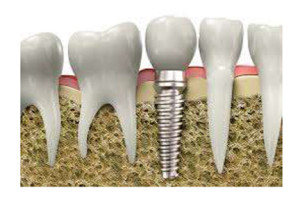 ADC-Dental-Implants#1-Web