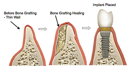 ADC-bone-grafting-dental-ridge-augment-Web